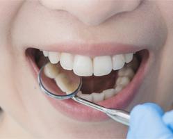 Dentistas en Zaragoza para adultos y niños